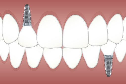 Dental Implants: What you need to Know